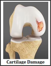 Cartilage Transplantation Old Saybrook Cartilage