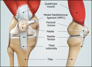 Tibial Tubercle Osteotomy